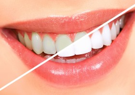 Is Teeth Whitening Bad for Your Health?