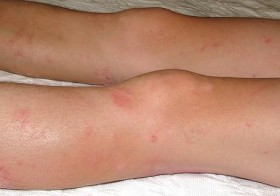 Controlling Your Eczema Once and for All